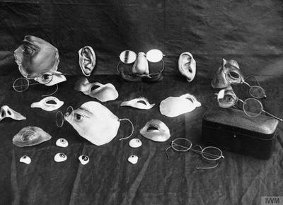 THE DEVELOPMENT OF 'PLASTIC SURGERY' DURING THE FIRST WORLD WAR