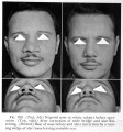 A.Seltzer, Plastic Surgery of the Nose